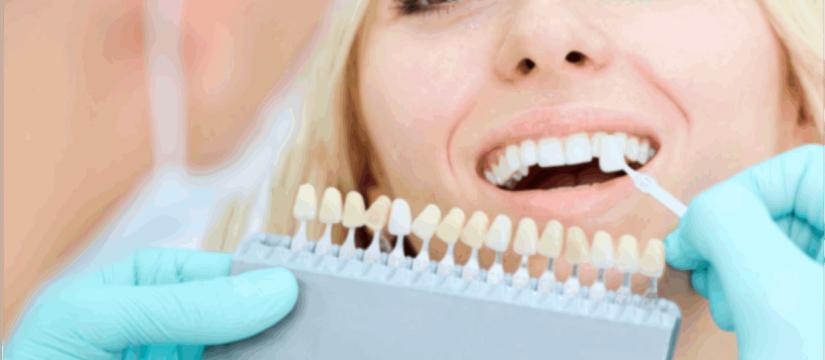corona dentale - COM Dentisti Maglie