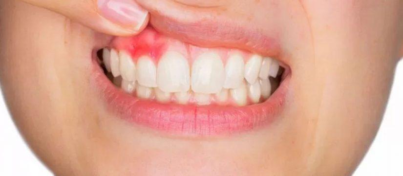 cisti dentale - COM DentistaMaglie