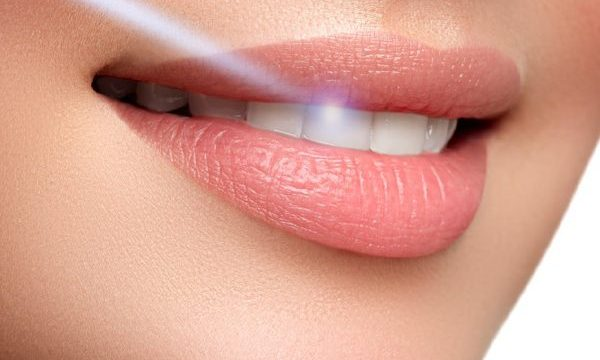 laser odontoiatrici - COM Dentista Maglie