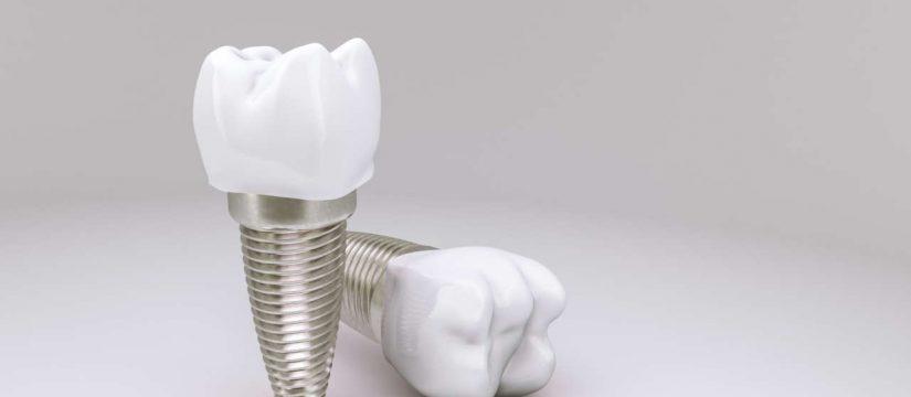 impianti dentali - COM Dentista Maglie
